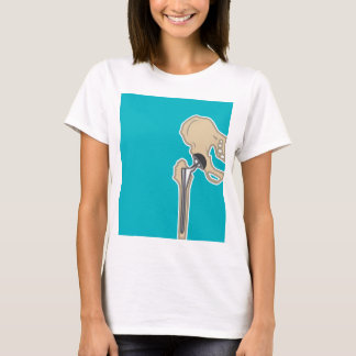 Hip Joint Replacement T-Shirt