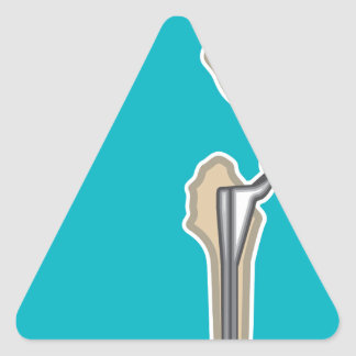 Hip Joint Replacement Triangle Sticker