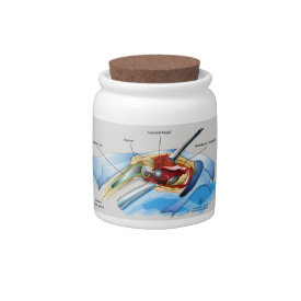 Hip Replacement Infographic candy jar Candy Dish at Zazzle