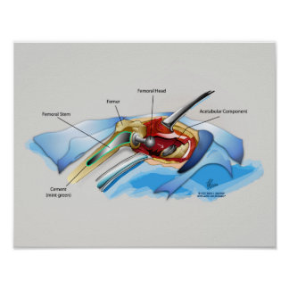 """Hip Replacement Infographic poster (med.14"""" x 11"""")"""