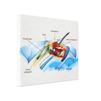 Hip Replacement Infographic wrapped canvas (Sm.) Canvas Prints