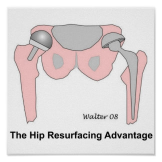 Hip Resurfacing Advantage Poster