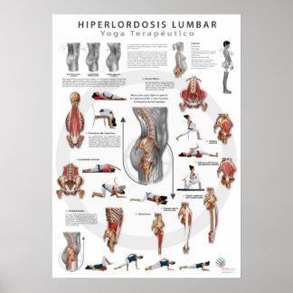 Hiperlordosis - definición, causas y tratamiento póster