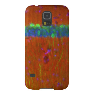 Hippocampal neurons 4 case for galaxy s5