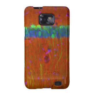 Hippocampal neurons 4 galaxy s2 cases