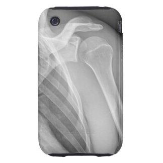 Hombro normal. Radiografía de la izquierda sana iPhone 3 Tough Protectores