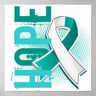 Hope 2 Cervical Cancer Poster