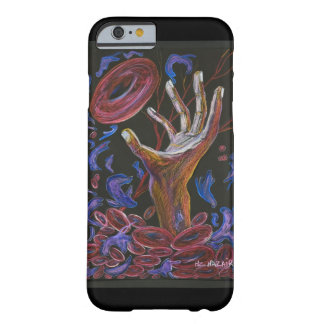 Hope - Sickle Cell Art by Nazaire Barely There iPhone 6 Case