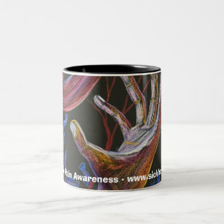 Hope - Sickle Cell Art Two-Tone Coffee Mug