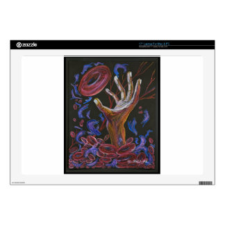 Hope - Sickle Cell Fine Art Laptop Decal