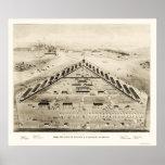 Hospital de Lincoln en Washington, DC 1865 Póster