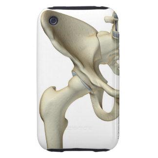 Huesos de la cadera 5 tough iPhone 3 cárcasas