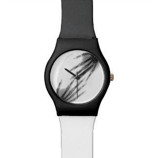 huesos de mano relojes