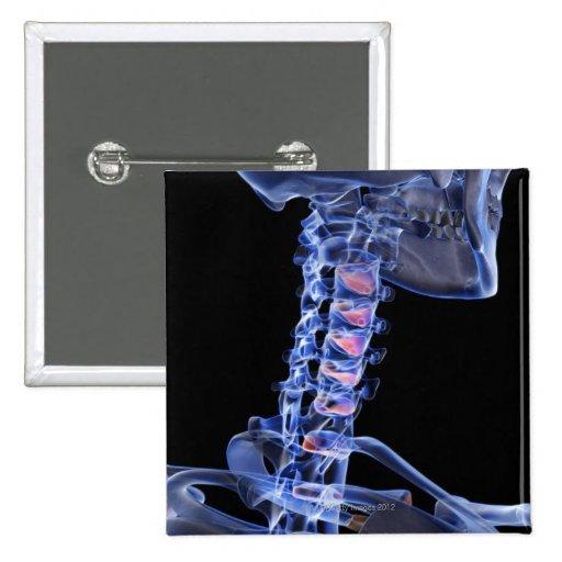 Huesos del cuello 3 pin