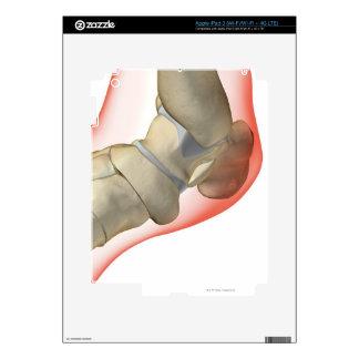 Huesos del pie 10 iPad 3 pegatina skin