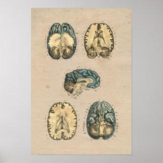 Human Brain Anatomy 1841 Print