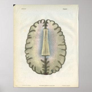 Human Brain Anatomy Print