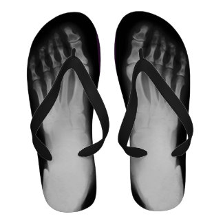 Human Foot X-Ray Flip-Flops