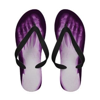 Human Foot X-Ray Flip Flops