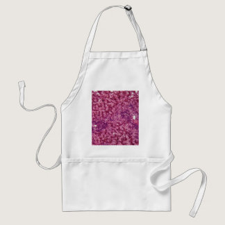 Human liver cells with cancer adult apron