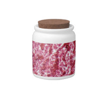 Human liver cells with cancer candy jar