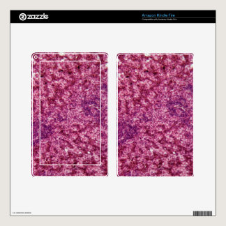 Human liver cells with cancer decals for kindle fire