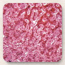 Human liver cells with cancer drink coaster