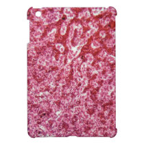 Human liver cells with cancer iPad mini case