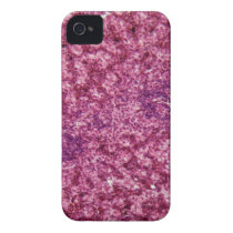 Human liver cells with cancer iPhone 4 case