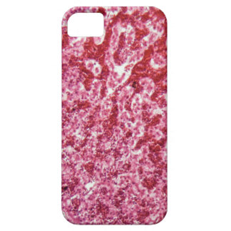 Human liver cells with cancer iPhone SE/5/5s case
