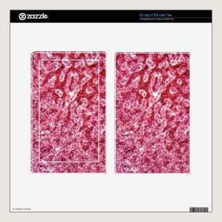 Human liver cells with cancer kindle fire skins