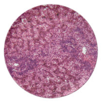 Human liver cells with cancer melamine plate