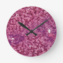 Human liver cells with cancer round clock