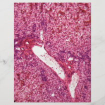 Human liver cells with cancer under the microscope