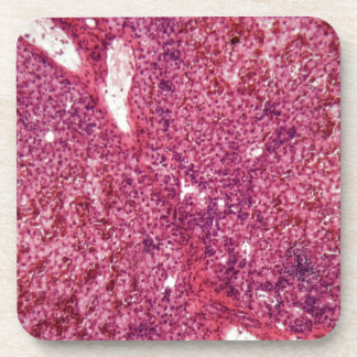 Human liver cells with cancer under the microscope beverage coaster