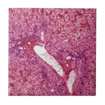 Human liver cells with cancer under the microscope ceramic tile