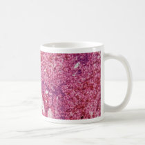 Human liver cells with cancer under the microscope coffee mug