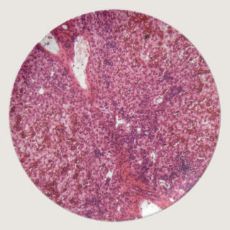 Human liver cells with cancer under the microscope melamine plate