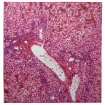 Human liver cells with cancer under the microscope napkin