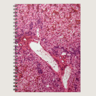Human liver cells with cancer under the microscope notebook