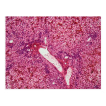 Human liver cells with cancer under the microscope postcard
