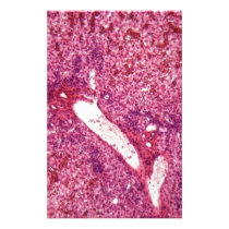 Human liver cells with cancer under the microscope stationery