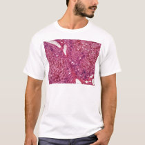 Human liver cells with cancer under the microscope T-Shirt