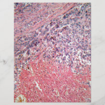 Human skin with skin cancer under a microscope.