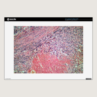 """Human skin with skin cancer under a microscope. 15"""" laptop skins"""