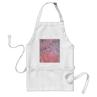 Human skin with skin cancer under a microscope. adult apron