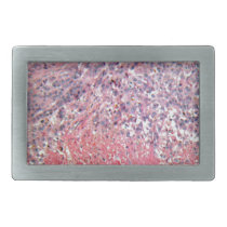 Human skin with skin cancer under a microscope. belt buckle