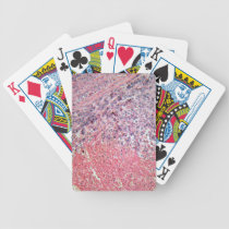 Human skin with skin cancer under a microscope. bicycle playing cards