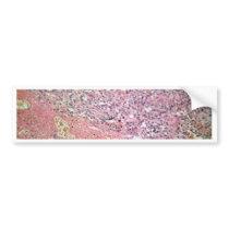 Human skin with skin cancer under a microscope. bumper sticker