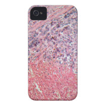 Human skin with skin cancer under a microscope. Case-Mate iPhone 4 case